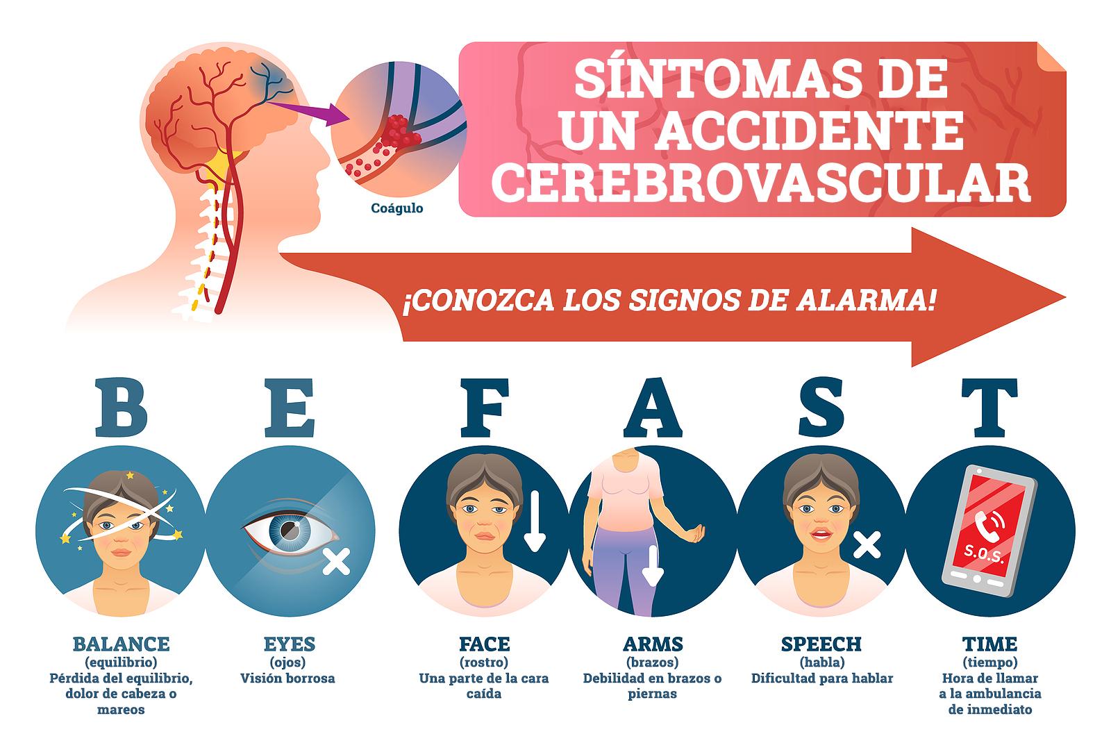 Gráfico de síntomas de un accidente cerebrovascular